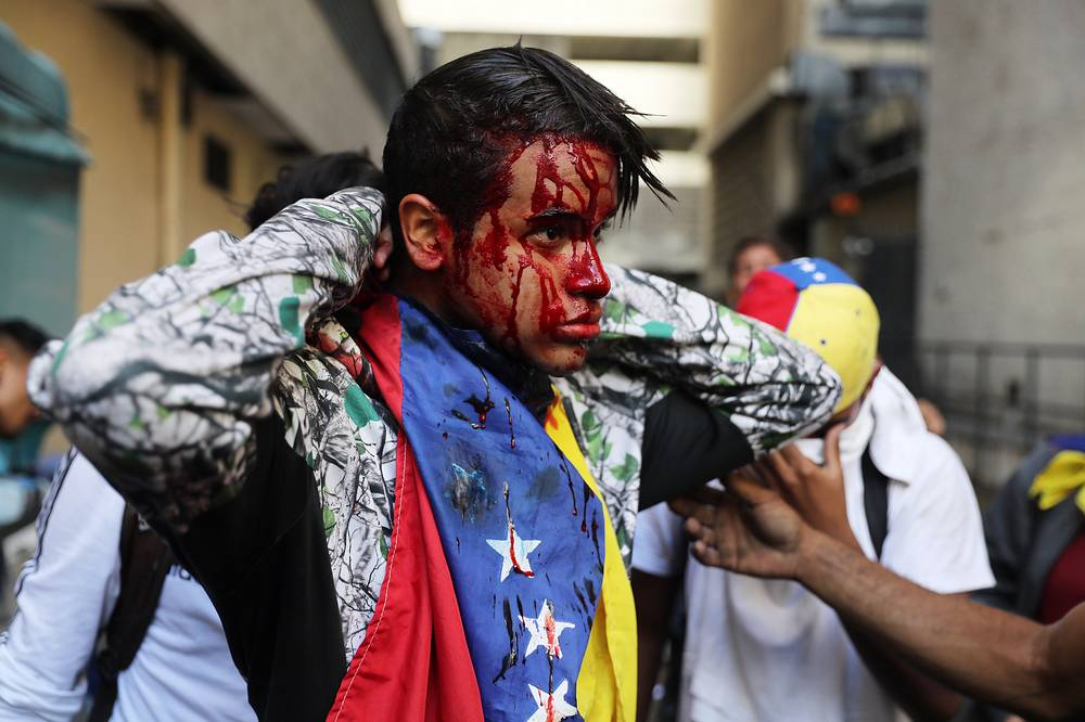 A wounded protester is seen as thousands take to the streets during a protest against Venezuelan President Nicolas Maduro in Caracas, January 23. Venezuela has fallen into a deep political crisis after National Assembly leader Juan Guaido declared himself interim president of Venezuela and promised to guide the country toward new election