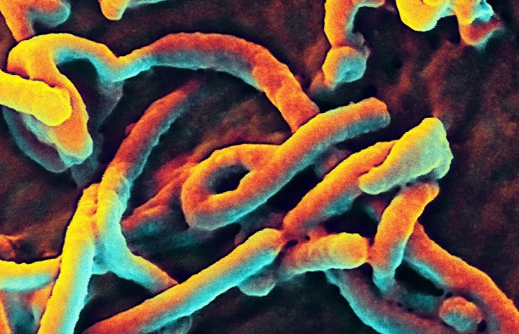 Microphotography of the Ebola virus